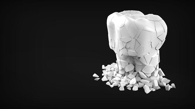 「八重歯」の矯正 歯周病や虫歯の予防