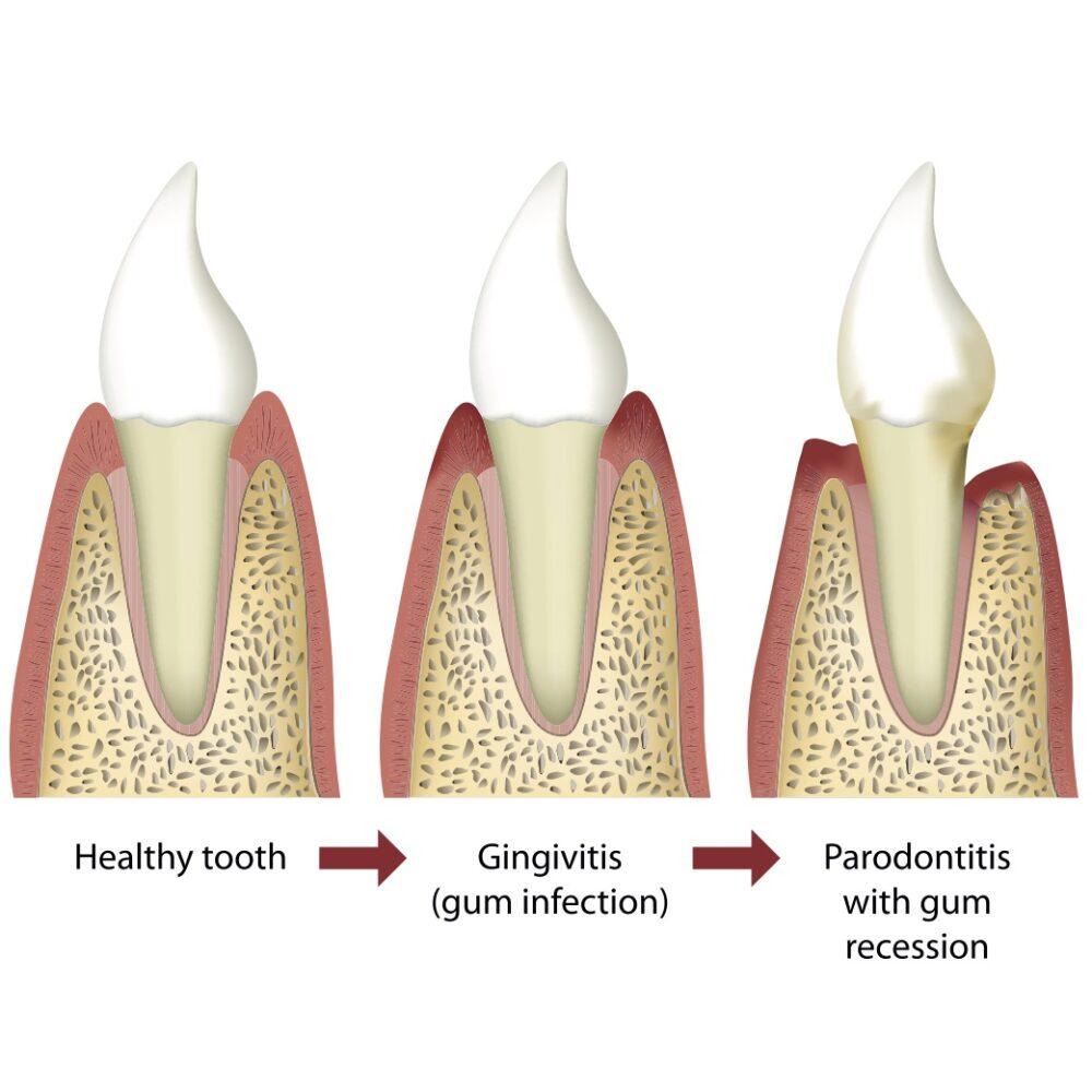 【大人の歯科矯正】歯周病だと歯科矯正はできない?