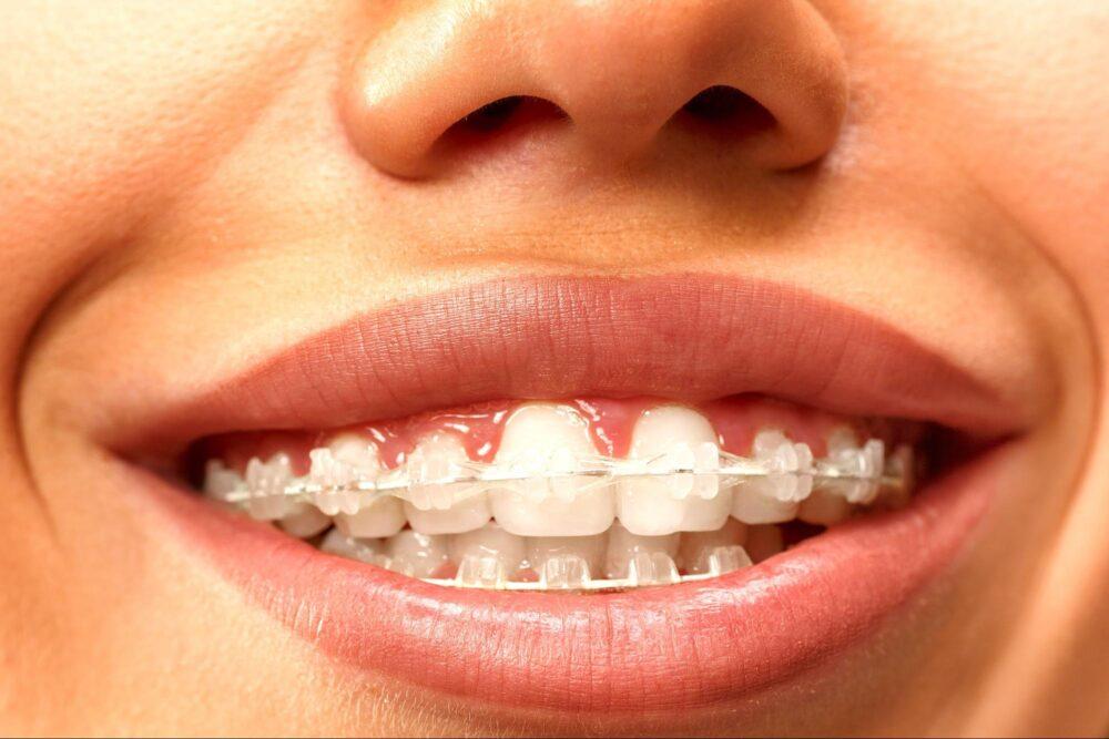 表側矯正をした笑顔の歯