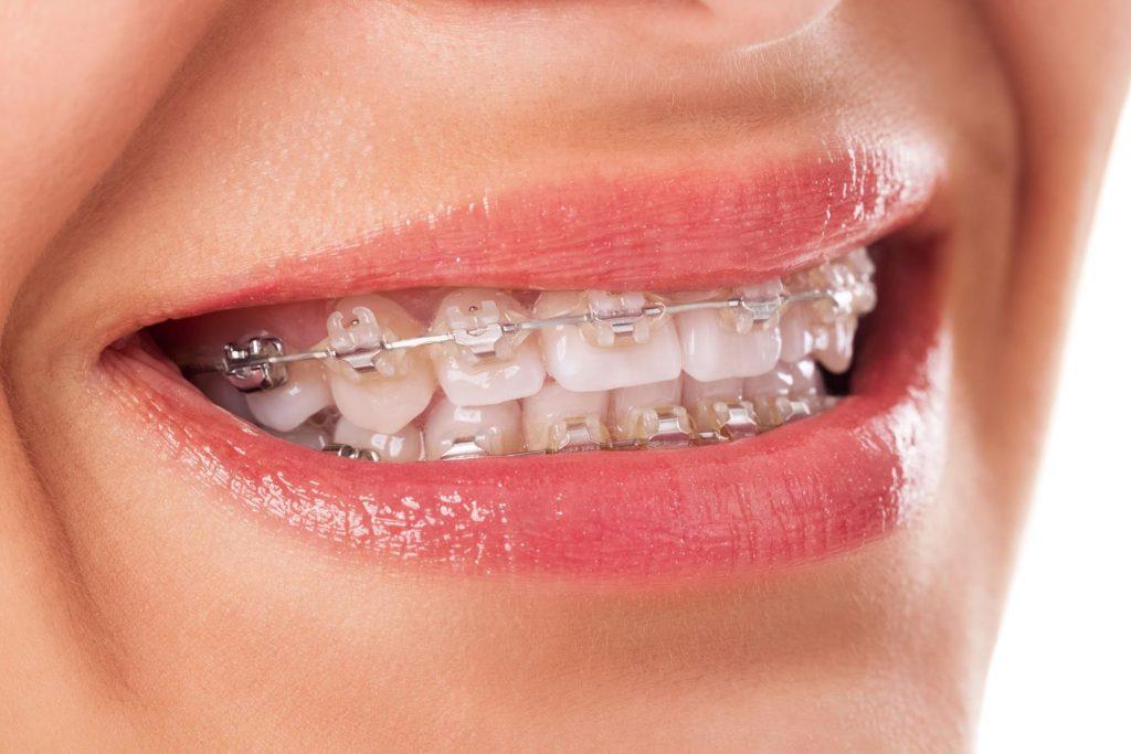 歯列矯正器具を付けている女性