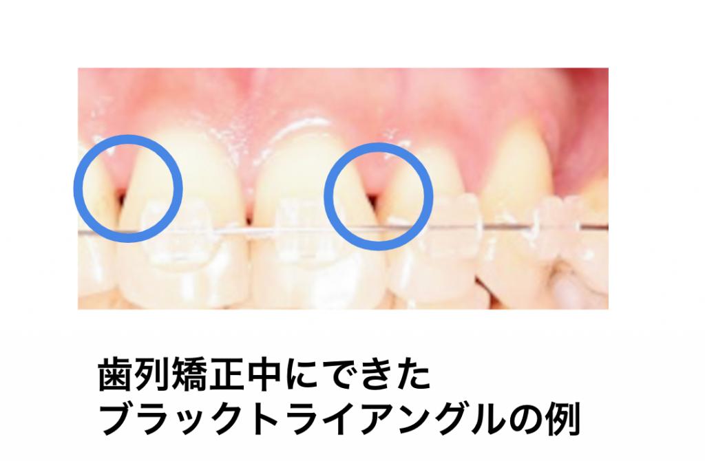 歯列矯正でできるブラックトライアングル