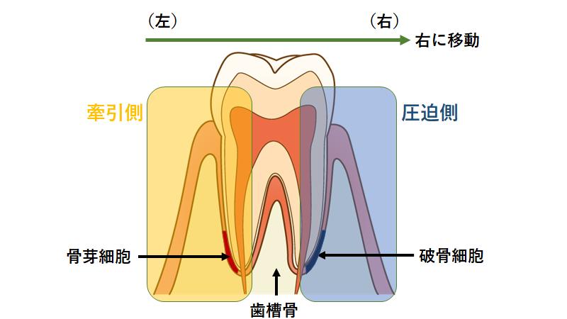 歯槽骨|ドクターに聞く歯列矯正「ブラックトライアングル」って何?_葛西モア