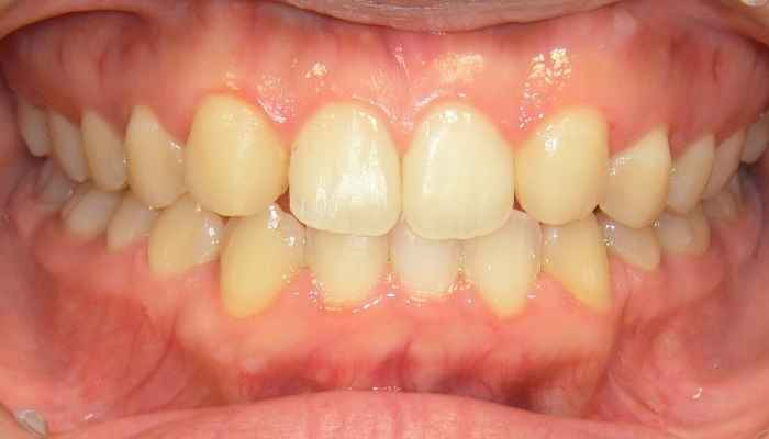 前歯が大きい,矯正治療後