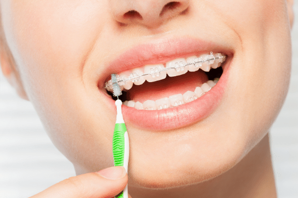表側矯正歯の掃除