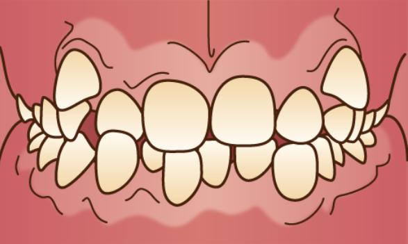 歯がデコボコに生えている「叢生(そうせい)」のイラスト