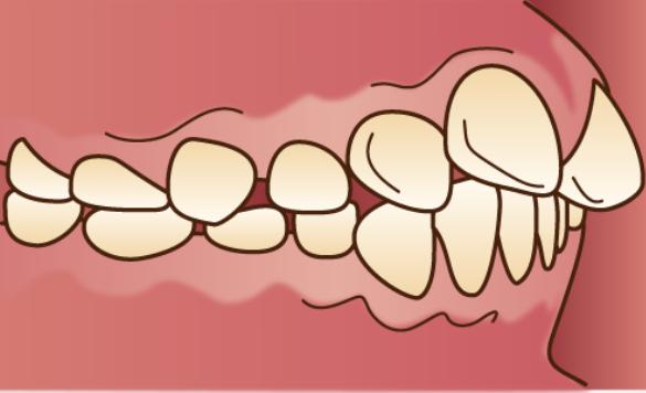 歯が全面に突出している「出っ歯(上顎前突)」のイラスト