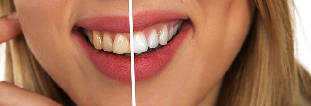 歯科矯正を受ける人に「ホワイトニング」をおすすめする理由