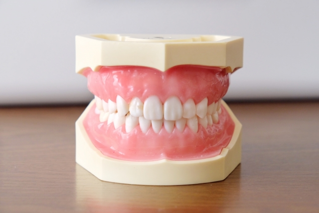 「不正咬合」を歯科矯正で治療した方がよい理由