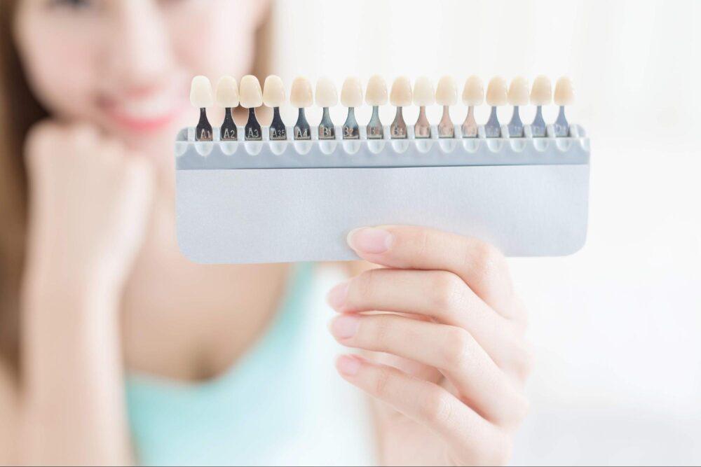 【審美歯科】歯を白くするために必要なのはクリーニング?ホワイトニング?