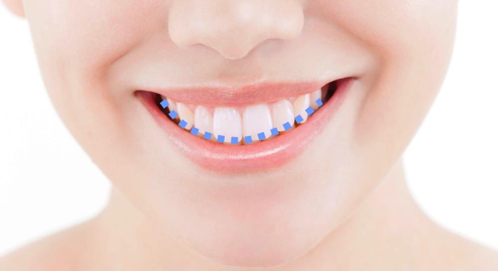 スマイルライン 笑顔 歯