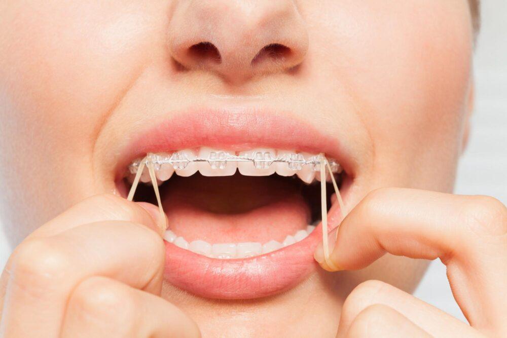 【大人の歯の矯正期間】どのくらいかかる?早く終わらせるためにできることは?