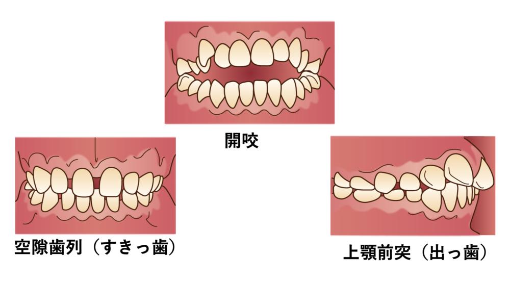 矯正で歯が動きにくい不正咬合の種類