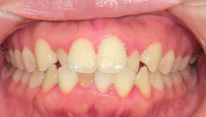 前歯が大きい,歯列矯正前