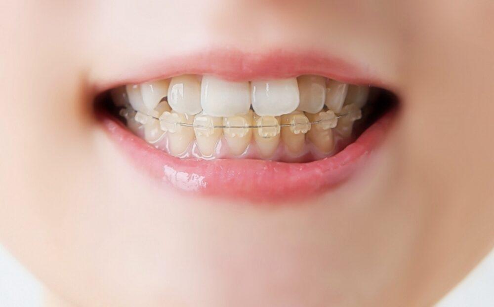 歯の矯正治療