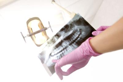 歯のレントゲン画像