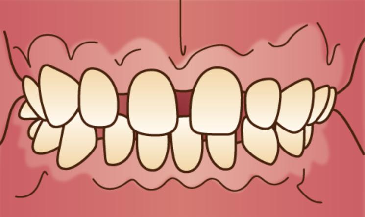 隙間が空いている「すきっ歯」のイラスト